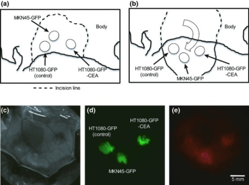 Inoculation of human cancer cells into immunodeficient mice and in vivo macroscopic imaging using a fluorescence zoom microscope. (a) Schema of the sites of inoculation of human cancer cells. The cells were inoculated s.c. into the back skin of nude mice at the rostral–ventral site (HT1080-GFP cells), the caudal–ventral site (HT1080-GFP-CEA cells) or the dorsal site (MKN45-GFP cells). (b) Schema of preparation of skin flaps. Seven or eight days after the inoculation, the inoculation sites were exposed by the skin-flap method. (c–e) In vivo macro imaging of tumors. In vivo macro imaging of the tumor masses was performed using a fluorescence zoom microscope 24 h after injection of Alexa Fluor 594-conjugated anti-CEA antibody (50 μg/mouse). Exposure times for the GFP and Alexa Fluor 594 fluorescence images were 30 and 100 ms, respectively. These experiments were repeated three times and similar results were obtained.