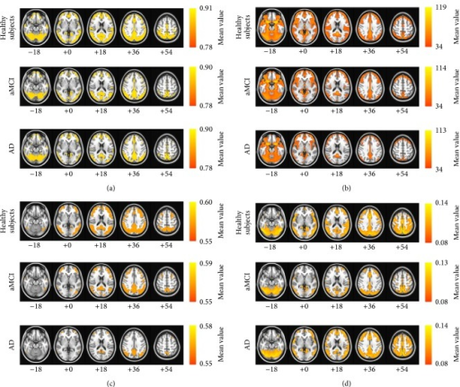 The mean images of each resting-state FMRI analysis approach: (a) regional homogeneity (ReHo), (b) amplitude of low-frequency fluctuation (ALFF), (c) fractional ALFF, and (d) global brain connectivity (GBC). The first row of each approach is the map for the healthy subjects, the second row of each approach is the map for the patients with aMCI, and the third row of each approach is the map for the patients with AD. The images are oriented with the anterior side placed at the top and the left side placed to the right. The red and blue colors represent positive and negative functional connectivity, respectively.
