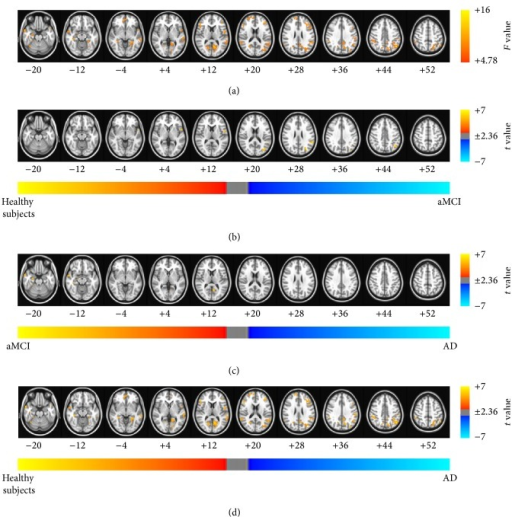 Brain regions exhibiting significant differences in the fractional ALFF (fALFF) index. (a) Brain regions showed significant differences in fALFF between healthy subjects and patients with aMCI and patients with AD (Pα < 0.05 (uncorrected P < 0.01, F > 4.78, 864 mm3, and AlphaSim corrected)). The results of the post hoc two-sample t-tests between pairs of the healthy subjects and patients with AD and aMCI were as follows: significant differences in brain regions was found (b) in patients with aMCI compared with healthy subjects, (c) in patients with AD compared with patients with aMCI, and (d) in patients with AD compared with healthy subjects (Pα < 0.05). The images are oriented with the anterior side placed at the top and the left side placed to the right.