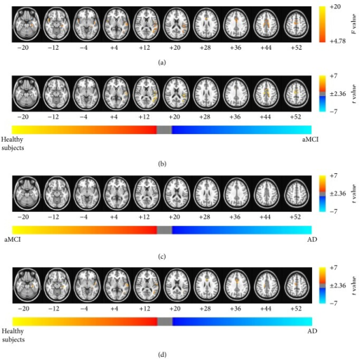 Brain regions exhibiting significant differences in the global brain connectivity (GBC) index. (a) Brain regions showed significant differences in the GBC index between healthy subjects and patients with aMCI and patients with AD (Pα < 0.05 (uncorrected P < 0.01, F > 4.78, 864 mm3, and AlphaSim corrected)). The results of the post hoc two-sample t-tests between pairs of the healthy subjects and patients with AD and aMCI were as follows: significant differences in the brain regions were found (b) in patients with aMCI compared with healthy subjects, (c) in patients with AD compared with patients with aMCI, and (d) in patients with AD compared with healthy subjects (Pα < 0.05). The images are oriented with the anterior side placed at the top and the left side placed to the right.