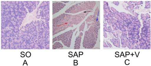 Histological changes in pancreatic tissue sections under the light microscopy (magnification, ×200). (A) Sham-operated group, pancreatic tissue section shows normal acinar structure. (B) SAP group, massive destruction was observed in acinar glandular structure and islet cells of pancreatic tissue. (C) SAP plus valsartan treatment group, relative preservation in pancreatic structure is seen compared with the SAP group. The black arrow indicates necrotic cells, the red arrow indicates edema, and the blue arrow indicates inflammatory cell infiltrations.