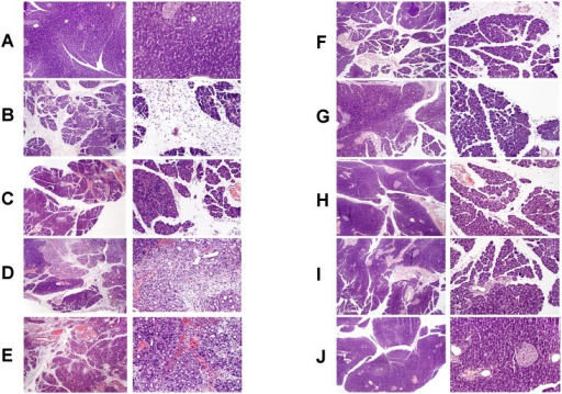 Representative morphological features of the pancreas.Hematoxilin-eosin counterstain. Histological images are presented in two different magnification for each group. In left column, original magnification 100×. In right column, original magnification 200×. (panel A) sham-operated control rats treated with saline; (panel B) rats with ischemia/reperfusion-induced pancreatitis after 1-day reperfusion; (panel C) rats with ischemia/reperfusion-induced pancreatitis after 2-days reperfusion and treated with saline; (panel D) rats with ischemia/reperfusion-induced pancreatitis after 2-days reperfusion and treated with obestatin; (panel E) rats with ischemia/reperfusion-induced pancreatitis after 5-days reperfusion and treated with saline; (panel F) rats with ischemia/reperfusion-induced pancreatitis after 5-days reperfusion and treated with obestatin; (panel G) rats with ischemia/reperfusion-induced pancreatitis after 9-days reperfusion and treated with saline; (panel H) rats with ischemia/reperfusion-induced pancreatitis after 9-days reperfusion and treated with obestatin; (panel I) rats with ischemia/reperfusion-induced pancreatitis after 14-days reperfusion and treated with saline; (panel J) rats with ischemia/reperfusion-induced pancreatitis after 14-days reperfusion and treated with obestatin. Saline or obestatin (8 nmol/kg/dose) were given i.p. twice a day, starting 24 h after induction of acute pancreatitis.
