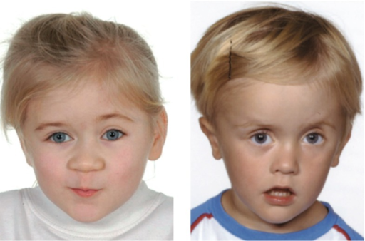 Preoperative appearance of children with unicoronal craniosynostosis, an early fusion of the skull plates. Craniosynostosis causes an increase in intracranial pressure and requires intracranial pressure monitoring, adapted from Eley et al. (2012)
