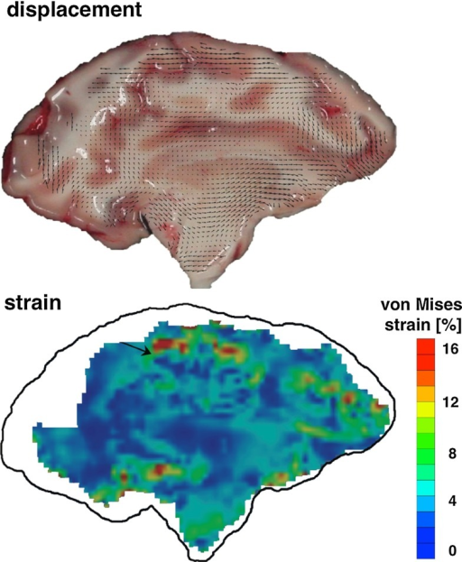 Local displacement field in an accelerated porcine brain slice and corresponding equivalent von Mises strain field, reproduced from Lauret et al. (2009)
