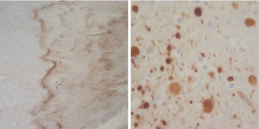 Axonal staining with beta-amyloid precursor protein (-APP). At low power, a wavy pattern of staining seen in ischemic areas (left); at higher power, rounded profiles stain brown, these represent individual swollen axons (right)