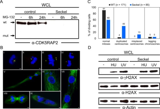Characterization of CDK5RAP2-deficient Seckel fibroblasts. (A) Western blot (Wb) analysis of CDK5RAP2 expression in wild-type (control) and CDK5RAP2-deficient fibroblasts carrying the CDK5RAP2 c.4005-9A>G mutation (Seckel): Control and Seckel fibroblasts were treated with MG-132 for the indicated time or left untreated as control. The arrows indicate the position and molecular weight of wild-type CDK5RAP2 (wt) and the expected position and molecular weight of truncated CDK5RAP2 (mut). Wb analysis demonstrates the complete loss of CDK5RAP2 protein in Seckel fibroblasts. (B) Interphase and mitotic morphology of Seckel fibroblasts: Immunofluorescence staining of Seckel fibroblasts with antibodies against centrin (green) and pericentrin (red), and DAPI staining of DNA (blue) (pictures I to IV), showing fragmented centrosomes (I), more centrin than pericentrin (II), multiple centrosomes (III), and misplaced centrosomes (IV). Immunofluorescence staining of Seckel fibroblasts with antibodies against alpha-tubulin (green) and pericentrin (red), and DAPI staining of DNA (blue) (pictures V to IX), showing unevenly distributed cytoplasm (V), micronuclei in addition to a main nucleus (VI), failed separation of daughter cells (VII, IX), and multiple centrosomes during cell division (VIII). Scale bar, 2 μm. (C) Quantification of mitotic and centrosomal anomalies in Seckel fibroblasts. Seckel fibroblasts show abnormalities in 40% of mitoses overall compared to 9% in wt cells. The major abnormal phenotypes observed were duplicated centrosomes and misplaced centrosomes. Values are not additive. (D) DNA damage response in control and Seckel fibroblasts: Wb analysis of HU- and UV-induced phosphorylation of H2AX (Ser139) indicates that the response to DNA-damaging agents is not appreciably altered in CDK5RAP2-deficient fibroblasts.