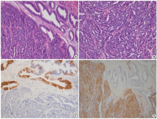 (A) Endometrial large cell neuroendocrine carcinoma (LCNEC) admixed with grade 1 endometrioid carcinoma. (B) Large vesicular nuclei and prominent nucleoli in LCNEC. (C) CD56 immunostaining: positive in endometrioid carcinoma and negative in LCNEC. (D) Diffuse synaptophysin expression in LCNEC.