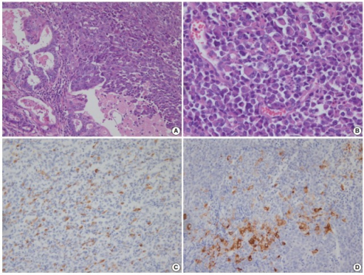 (A) Dedifferentiated carcinoma composed of undifferentiated carcinoma and grade 1 endometrioid carcinoma. (B) Dyscohesive tumor cells growing in a patternless fashion without gland formation. Focal positivity of cytokeratin (C) and synaptophysin (D) immunostaining.