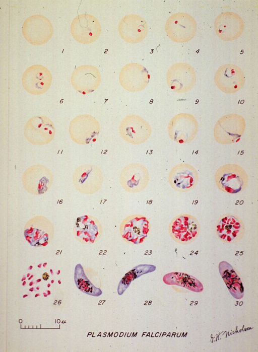 <p>Micorscopic views illustrating the stages of growth of a malarial parasite.  (1) A normal red cell; (2-18) trophozoites; (19-26) schizonts; (27, 28) macrogametocytes; (29, 30) microgametocytes.</p>