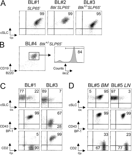 Characterization of pre-B cell tumors by flow cytometry. (A) Dot plots for cytoplasmic SLC and μ H chain in gated B220+ cells from tumor samples from the indicated mice, grown for 1 to 3 wk in the presence of IL-7. (B) Flow cytometric analysis of lacZ expression in gated CD19+B220+ pre-B lymphoma cells in a lymph node from a Btk+/−SLP-65−/− mouse. (C) Phenotype of two pre-B cell lymphoma cultures, showing variable expression of cytoplasmic κ L chain, CD43, and CD2. Cell suspensions were stained for the indicated markers in combination with B220, and the results are displayed as dot plots of gated B220+ cells. (D) Phenotype of two separate tumor cell suspensions derived from BM and mesenteric lymph node from a single mouse, which were cultured in the presence of Il-7 for 7 d.