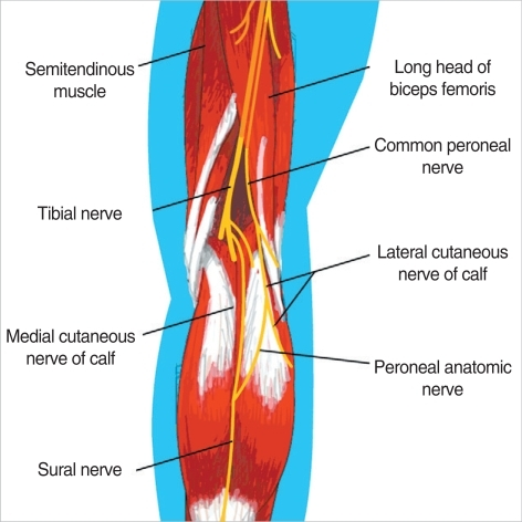 anatomy of the common peroneal nerve and sural nerve (1 | open-i, Human Body