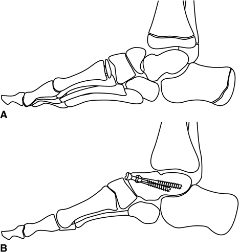 (A) Preoperative standing lateral demonstrating dorsal rotatory subluxation of the navicular on the head of the talus. Note also the loss of normal calcaneal pitch as compared to the contralateral side. (B) Postoperative standing lateral radiograph demonstrating talonavicular arthrodesis with restoration of calcaneal pitch.