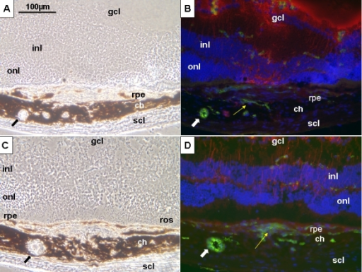 Cellular reactions after photocoagulation in young and old mice. Representative phase contrast images (A, C) and immunohistochemistry (B, D) at month 7 after photocoagulation in 10–12-week-old mice (group III; A, B) and 1-year-old mice (group IV) (C, D). A, C: Phase contrast images show a thickened choroid with pseudocystic cavities (black arrows). B, D: Immunofluorescence analysis was performed in 10–12-week-old mice (B) and 1-year-old mice (D). Choroidal neovascularization reaction is more prominent with aging (yellow arrows). Immunohistochemistry demonstrates that some of the pseudocystic cavities are vessels (white arrows). Scale bar (A-D) represents 100 µm. Abbreviations: choroid (ch), ganglion cell layer (gcl), inner nuclear layer (inl), outer nuclear layer (onl), rod outer segments (ros), retinal pigment epithelium (rpe), sclera (scl).