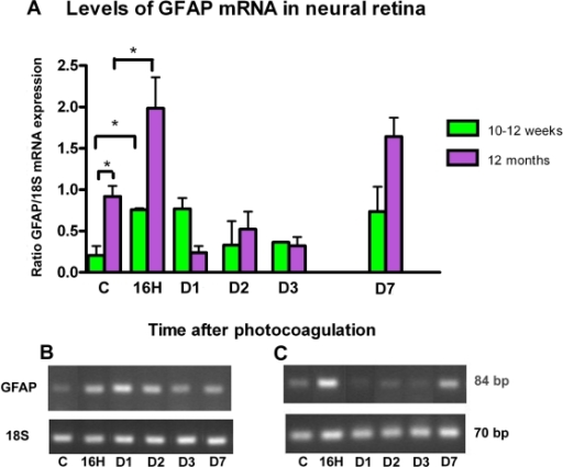 GFAP expression after photocoagulation in neural retina. A: The amount of glial fibrillary acidic protein (GFAP) transcripts was compared with 18S transcripts (y-axis) expressed in the same samples. Four eyes were assessed at each time point. Values in histogram are means±SEM B-C: Representative samples of PCR fragments (individual ratio GFAP:18S closest to the corresponding mean) were analyzed by 3% agarose gel electrophoresis and visualized by ethidium bromide staining under ultraviolet light for 10–12-week-old mice (B) and 1-year-old mice (C). Prior to laser treatment, GFAP mRNA was highly expressed in old control mice versus young control mice (p=0.025). Following laser treatment mRNA expression was increased in the two groups, reaching higher levels at 16 h and day 7. Compared to control mice in each group, the increase of GFAP mRNA level is statistically significant at 16 h (p=0.04 in young group; p=0.03 in old group) and at day 7 (p=0.03 in old group).