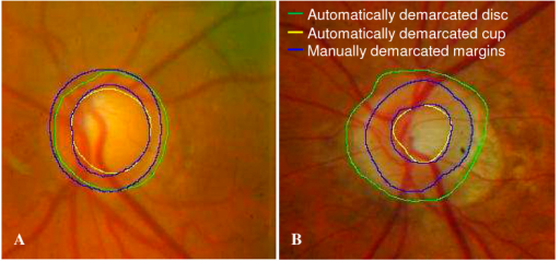 Comparison between automatically photogrammetric algorithm and manual disc demarcation. (A) A successful example of disc demarcation. (B) An example of failure in disc demarcation due to prominent peripapillary atrophy.