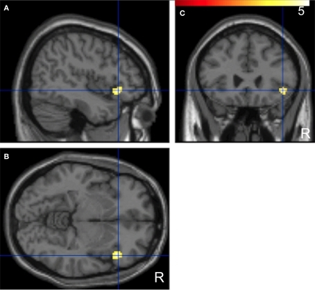 "Significant positive correlations of the innovation between the paired subjects who had been ""face-to-face"" during fMRI compared with the non-paired subjects. Images are superimposed on the parasagittal (A), axial (B), and coronal (C) sections of T1-weighted high-resolution MR images. The blue lines in each section cross in the right IFG (44, 26, −6). The color scale indicates the t-values."