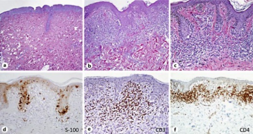 a–c A dense infiltrate at the dermoepidermal junction composed by lymphocytes with hyperchromatic nuclei, exocytosis, and focal epidermotropism, together with junctional melanocytic nests. d Immunohistochemistry showing S-100 protein-positive staining in melanocytic nevus cells.
