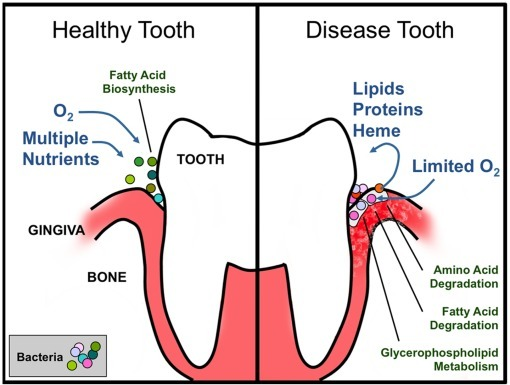 Schematic representation of the putative metabolic lifestyle shifts associated with the change in microbial flora around the tooth and gum tissue upon the transition from a healthy (A) to an advanced periodontal disease (B) state.The healthy state is dominated by the bacterial genera Streptococcus, Fusobacterium, Actinomyces, and Corynebacterium, whereas the disease state is primarily dominated by pathogenic genera such as Prevotella, Leptotrichia, Treponema, and Fusobacterium.