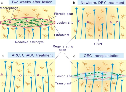 Elimination of the fibrotic scar in the mouse and rat brain has been shown to promote axonal regeneration in a variety of animal models. a In injured brain, axons stop at the border of the fibrotic scar and do not regenerate. b In neonatal and DPY-treated animals, axons regenerate despite of the presence of glial scar and chondroitin sulfate proteoglycan (CSPG) (Stichel et al. 1999a; Kawano et al. 2005). c In the hypothalamic arcuate nucleus (ARC) and by chondroitinase ABC (ChABC) treatment, upregulation of chondroitin sulfate is prevented and axons regenerate (Homma et al. 2006; Li et al. 2007). d In olfactory ensheathing cell (OEC)-transplanted rats, fibrotic scar is not formed and axons regenerate (Teng et al. 2008)