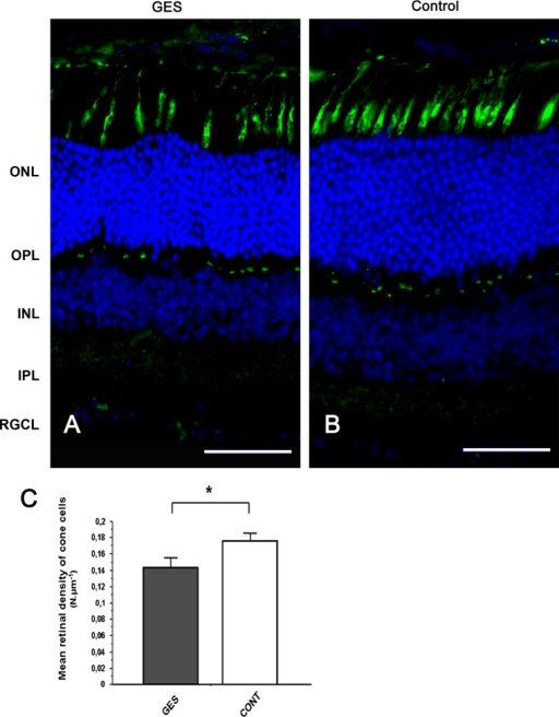 Taurine deficiency induces cone photoreceptors loss in GES-treated mice. Retinal sections of control animal (b) and GES-treated mice (a) were stained with peanut lectin (a, b), Inner and outer segments of cone photoreceptors are absent in many points of the retina in GES mice, leaving optically empty spaces throughout the segments photoreceptors line (a). These spaces are not detected on control eyes sections (b). Even if present, the inner/outer segments of cone photoreceptors seem broken and not well lined up in the treated mice (a) whereas they are aligned in controls (b). Cone photoreceptors count revealed a decrease number of cells in the GES-treated mice (SEM, n = 8, P < 0.05, asterisk denotes Student's t test). Scale bars represent 25 μm (ONL outer nuclear layer, OPL outer plexiform layer, INL inner nuclear layer) (c)