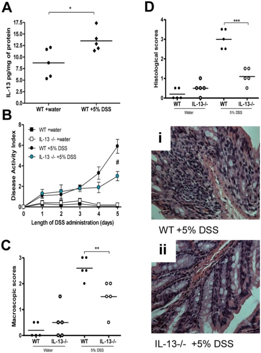 Effects of IL-13 deficiency in DSS-induced colitis.WT and IL-13−/− mice were administered 5% DSS in drinking water to induce colitis. Control mice received water without DSS. (A) Colonic IL-13 levels in WT mice with or without DSS. (B) Disease activity index (DAI). (C) Macroscopic damage score in DSS-induced colitis on day 5 after DSS induced colitis and in mice without colitis. (D) Histological damage assessment on day 5 post-DSS administration. (i) And (ii) Light micrograph of H&E-stained colonic section. DAI data represented as mean ± SEM from 5 mice per group; *represents statistical significance where p<0.05; # significantly lower disease activity in IL-13−/− mice receiving DSS compared to WT mice receiving DSS.