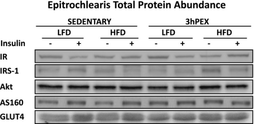 Total protein abundance for IR, IRS-1, Akt, AS160, and GLUT4. Data were analyzed by two-way ANOVA within each insulin level (minus or plus insulin). There were no significant differences for the total abundance of any of these proteins.