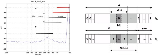 Hypothesis considered for the derivation of the approximate M-ary LRT and its expected value.Left: Example of ECG segment (blue line) and its observation window composed of QRS (red line) and noise (black line) frames (M = 5 and r = 1). Right: The most probable hypotheses in  and  for a transition as shown in left figure.