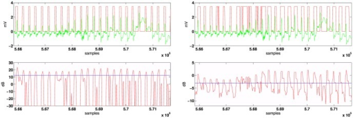 ECG signal in green line (record 108 containing several abnormal shapes, noise and artifacts).Left: MAP decision in red line based on M( = 3)-ary LRT. Right: A real time implementation of the matched filter-based method [15].