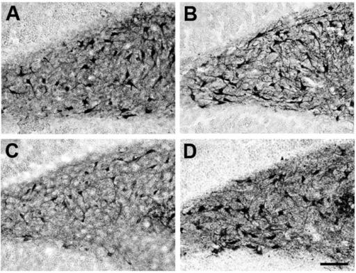 Effect of Ca2+/CaM-Kinase II on dendrite formation elicited by Melatonin. Participation of CaMKII on dendrite formation elicited by MEL was evaluated by specific inhibition of its activity with KN-62. Thus, rat brain hippocampus was cut in 400 µm slices and cultured in Neurobasal® (GIBCO by Life Technologies, Grand Island, NY, USA) media for 7 days. Then they were incubated for 6 h with either the vehicle (A); 100 nM MEL (B); or pre-incubated with 10 µM KN-62 (C,D) followed by 6 h incubation with the vehicle (C) or 100 nM MEL (D). After the incubation time, slices were cut into 50 µM sections and immunostained for the specific marker of dendrites MAP2. Afterwards, slices were incubated with a secondary antibody coupled to biotin-avidin-peroxidase. Images were acquired with a digital camera coupled to a light microscope with the NIS-Elements software. Scale bar = 100 µm.