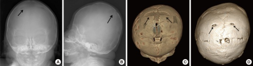 Serial changes of biparietal foramena in the skull. Frontal (A) and Lateral (B) radiographs taken at age 4 months. Large biparietal foramina are noted (arrows). 3-D reconstruction image (C) of the skull at age 4 months shows enlarged biparietal foramina acrossing midline (arrows). Follow up skull 3-D reconstruction image (D) at age 8 yr shows persistent biparietal foramina (arrows).