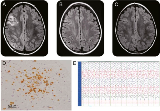 MRI, pathology, and EEG findings(A) Axial fluid-attenuated inversion recovery (FLAIR) MRI sequences of the brain showing right frontal and parietal cortical-subcortical hyperintensities at onset. (B) Axial FLAIR sequences 1 year later after therapy showing regression of the lesions. (C) Axial FLAIR sequences at the time of seizure recurrence after steroid withdrawal showing no new lesions. (D) Biopsy of the right parietal lesion with immunohistochemistry for CD8 showing a cortical cluster of inflammatory cells consisting primarily of cytotoxic T cells. (E) EEG showing right hemispheric ictal episode.