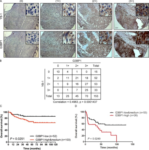 Expression of G3BP1 correlates with YB-1 and is linked to poor outcomes. (A) Serial sections of three TMAs containing 153 different human sarcoma cases were subjected to sequential IHC using antibodies to YB-1 or G3BP1 as indicated. Panels show expression of YB-1 and G3BP1 by IHC in four different representative sarcoma cases. Insets show 10-fold higher magnification of representative areas. Immunostaining for each protein was scored as no (0), low (1+), moderate (2+), or high expression (3+) as indicated. Bars: (main panels) 100 µm; (enlarged insets) 20 µm. (B) Tabulated values from IHC scoring of A, with a Spearman's rank correlation coefficient between expression of each protein of 0.4963 and a p-value of 0.0001437. (C and D) Kaplan-Meier estimates for overall survival (event = deceased) in relation to G3BP1 expression for Ewing sarcoma patients with localized disease (high and medium vs. low G3BP1 expression; C) and metastatic disease (high vs. low and medium G3BP1 expression; D).