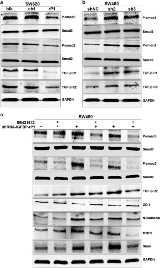 IGFBP-rP1 inhibits TGF-β receptor expression and its downstream signaling in SW620 and SW480 cells. (a) SW620 cell lysates from blk, vector, and IGFBP-rP1 cells were analyzed the indicated proteins by western blot. (b) SW480 cell lysates from scramble shRNA and IGFBP-rP1 shRNA cells were analyzed the indicated proteins by western blot. (c) Western blot of the indicated antibodies in two SW480-IGFBP-rP1 knockdown cell clones and controls untreated or treated with 10 ng/ml SB431542 for 48 h