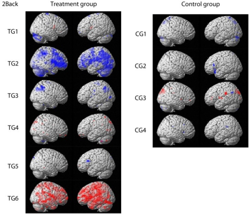 Contrasts comparing baseline and post-training fMRI results for the treatment group and the control group, respectively. Activation increase is marked in red whereas decreased activation over time is highlighted in blue (p < 0.001 uncorrected; threshold: 10 voxels per cluster). Figures are shown in radiological convention.