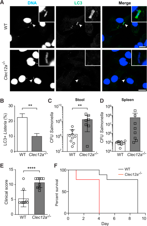 Clec12a−/− Mice Are More Susceptible to Salmonella Infection In Vivo(A) Confocal micrographs of LC3-Listeria colocalization in WT and Clec12a−/− BMDMs at 1 hr post-infection. The scale bars represent 10 μm.(B) Quantification of LC3-Listeria colocalization in WT and Clec12a−/− BMDMs. Data shown represent mean ± SD of n = 3 independent experiments; unpaired t test. ∗∗p < 0.01.(C and D) Salmonella cfus quantified per gram of stool (C) and per organ (D) at 4 days post-infection are displayed. Data are shown as mean ± SD; ∗∗p ≤ 0.01. Data are representative of at least two independent experiments (n = 9 for WT; n = 7 or 8 for Clec12a−/−).(E) Clinical score for infected mice at 4 days post-infection. Data are shown as mean ± SD. Data are representative of at least two independent experiments. ∗∗∗∗p < 0.0001; unpaired t test. (n = 14 for WT; n = 13 for Clec12a−/−).(F) Survival curve for infected WT and Clec12a−/− mice (n = 9 mice per genotype).See also Figure S3.