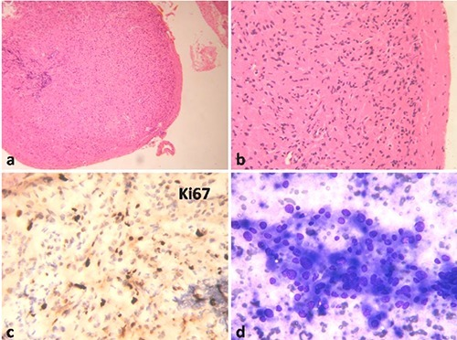 a) Esophageal tumor nodule at low magnification, Hematoxylin & Eosin (H&E, 100×). b) High magnification showing tumor composed of sheets of polygonal cells with eosinophilic cytoplasm, H&E 400×. c) Low Ki67 proliferative fraction, DAB chromogen 400×. d) Liver aspirate showing loose clusters of polygonal cells with variation in nuclear size and abundant cytoplasm, MGG 400×.