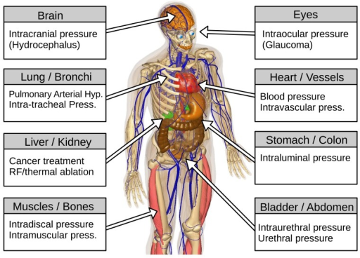 Body parts with pressure measurements and the relevant underlying physiological/pathophysiological condition associated with each organ/tissue (created in bodyparts3d [13,14]).