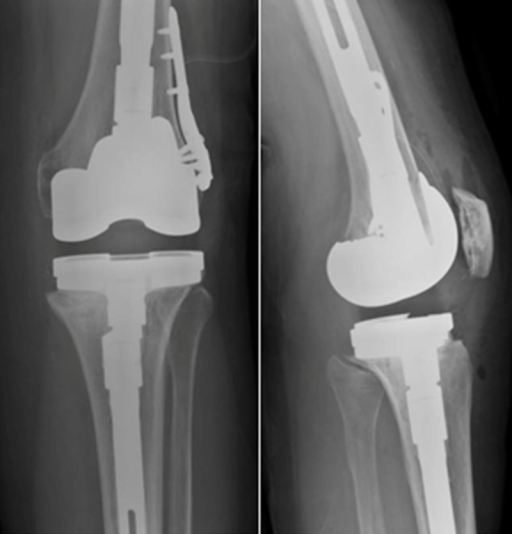 Postoperatively after the revision total knee arthroplasty, there are well-aligned long-stemmed components. There is no evidence of osteolysis or loosening.