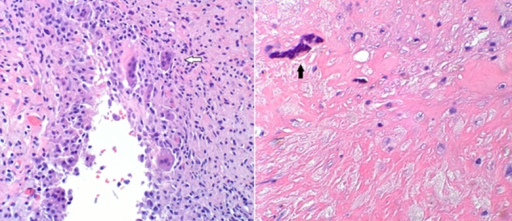 Hematoxylin-Eosin stained histology showing numerous giant cells (white arrow) and calcifications (black arrow) in the excised synovium.