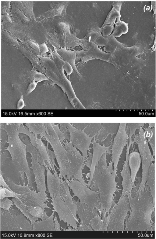 SEMs of olfactory ensheathing cells adhered to solvent cast films fabricated from chitosan with: (a) 72% DDA (Magn. x600) and (b) 85% DDA (Magn. x800).