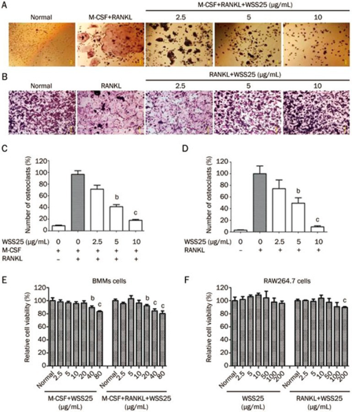WSS25 inhibits RANKL-induced osteoclast differentiation in mouse bone marrow monocytes (BMMs) and RAW264.7 cells. (A) Mouse BMMs (5×104 cells/mL) were treated with M-CSF (20 ng/mL) and RANKL (50 ng/mL) in the presence or absence of WSS25 (2.5, 5 and 10 μg/mL). After 7 d of treatment, the cells were stained with a TRAP kit and photographed (×1000). (B) RAW264.7 cells (1×105 cells/mL) were incubated with RANKL (50 ng/mL) in the presence or absence of WSS25 (2.5, 5 and 10 μg/mL) for 4 d, followed by TRAP-staining. Then, the cells were photographed (×1000). (C) The numbers of TRAP-positive, multinucleated (≥3 nuclei) osteoclasts were counted in BMMs. n=3. Values are shown as the mean±SD. bP<0.05, cP<0.01 vs 0 μg/mL WSS25+RANKL+M-CSF group. (D) The numbers of TRAP-positive, multinucleated (≥3 nuclei) osteoclasts were counted in RAW264.7 cells. n=3. Values are shown as the mean±SD. bP<0.05, cP<0.01 vs 0 μg/mL WSS25+RANKL group. (E) BMMs (2×105 cells/mL) were incubated with M-CSF (20 ng/mL) and the indicated concentration of WSS25 or with M-CSF (20 ng/mL) plus RANKL (50 ng/mL), in the presence or absence of different concentrations of WSS25 for 7 d before cytotoxicity was tested by MTT assay. (F) RAW264.7 cells (2×105 cells/mL) were treated with various concentrations of WSS25 or with WSS25 plus RANKL (50 ng/mL) for 7 d before cytotoxicity was tested by MTT assay. n=3. Values are shown as the mean±SD. bP<0.05, cP<0.01 vs normal group.