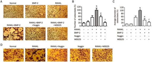 BMP-2 enhances RANKL-induced osteoclast formation. However, WSS25 blocks this induction in RAW264.7 cells. (A) RAW264.7 cells (1×105 cells/mL) were incubated with BMP-2 (100 ng/mL), RANKL (20 ng/mL), or both, in the presence or absence of WSS25 (10 μg/mL) or noggin (1 μg/mL) for 4 d. Cells were then stained for TRAP expression detection and photographed (×1000). (B) The numbers of TRAP-positive, multinucleated (≥ 3 nuclei) osteoclasts were counted. (C) The average diameter of multinucleated osteoclasts was calculated. (D) RAW264.7 cells (1×105 cells/mL) were incubated with RANKL (50 ng/mL) and treated with noggin (1 μg/mL) or WSS25 (10 μg/mL). After 4 d, multinucleated osteoclasts were stained with TRAP solution. n=3. Values are shown as the mean±SD. bP<0.05 vs RANKL group. eP<0.05, fP<0.01 vs RANKL+BMP-2 group.