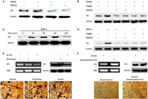 WSS25 inhibits the RANKL-induced expression of Id1 in RAW264.7 cells. (A) RAW264.7 cells (1×106 cells/mL) were treated with RANKL (50 ng/mL), in the presence or absence of WSS25 (10 μg/mL), for 22 h. The expression of Id1 was detected by Western blot assay. (B) RAW264.7 cells (1×106 cells/mL) were incubated with RANKL (50 ng/mL), in presence or absence of WSS25 (10 μg/mL) and noggin (250 ng/mL), for 22 h. The expression of Id1 was detected by immunoblotting. (C) The cells were treated with BMP-2 for the indicated times and the expression of Id1 was measured by Western blot assay. (D) RAW264.7 cells were treated with BMP-2 (100 ng/mL), in the presence or absence of WSS25 (10 μg/mL) or noggin (250 ng/mL), for 60 min. Then, the cells were lysed and the extracts were probed with anti-Id1 antibody. (E) The expression of Id1 was detected by reverse transcription PCR and Western blot analysis. RAW264.7 cells, negative control cells, and Id1 gene knockdown RAW264.7 cells (1×105 cells/mL) were treated with RANKL (50 ng/mL) for 4 d. Cells were then stained by TRAP and photographed. (F) The expression of Id1 was detected by reverse transcription PCR and Western blot analysis. In a final set of cells, Id1 was first genetically knocked down in RAW264.7 cells, and then overexpressed (1×105 cells/mL). These cells were treated with RANKL (50 ng/mL) for 4 d before they were stained with TRAP and photographs were taken (×100).