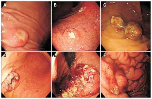 Endoscopic appearance of metastatic tumors in the stomach. (A) Resembling submucosal tumors due to bladder cancer. (B) Resembling early primary gastric cancer due to lung adenocarcinoma. (C-F) Resembling advanced gastric cancer: (C) Type 1, due to renal cell carcinoma; (D) Type 2, due to choriocarcinoma; (E) Type 3, due to pulmonary squamous cell carcinoma; (F) Type 4, due to ovarian cancer.