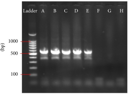 Amplification of a CVS-11 serial dilution using hnRT-PCR. Ethidium bromide stained gel after amplification of the CVS-11 strain using dilutions from 10−1 to 10−8 (A–H). The amplification product of 582 bp is clearly visible up to a dilution of 10−5 (lane E). Ladder = standard for determination of amplification product size.