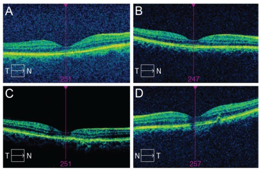 (A) Case A with hyper-reflective substances visualized by optical coherence tomography (OCT). (B) Case B shows anatomic success objectified by OCT. (C) Case C, OCT demonstrates foveolar atrophy. (D) Case D, pigment epithelial detachment and inner and outer segment line interruption. T = temporal; N = nasal.