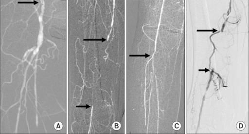 Superficial femoral artery (SFA) occlusion. (A) Injecti   Open-i