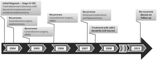Clinical course of the disease and previous treatments of Patient # 7, the remaining long-term survivor without evidence of recurrent disease. That patient with high-level of microsatellite instability had three prior resections of the repetitively recurring intraperitoneal tumor, but remains without any sign of disease recurrence >90 months following the fourth resection, which was combined with intranodal DC vaccine administration