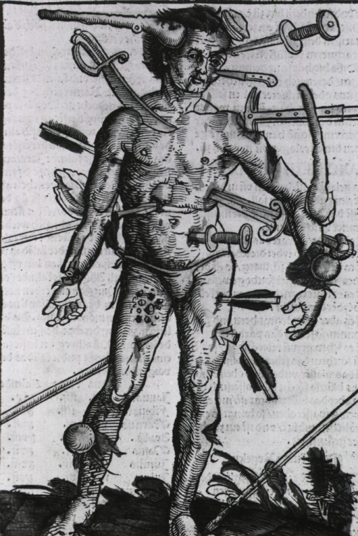 <p>A man with wounds from many different kinds of weapons.</p>