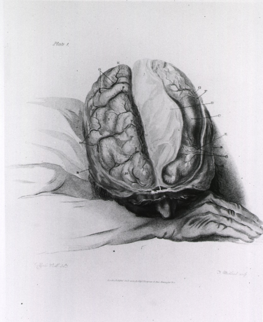 <p>Head resting on the back of the right wrist, the flesh and skull cap have been removed exposing the brain; lettered lines lead to the various parts and convolutions.</p>